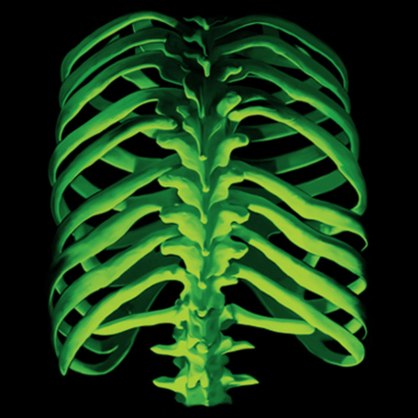 Diseño Transfer Glow Bones - Espalda - Sobre tejido negro